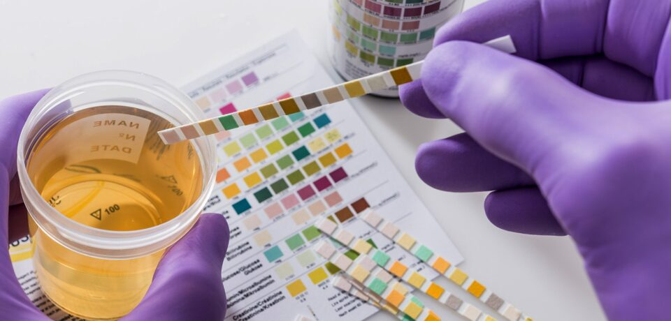 Drug Policy Implementation: Drug Test In Every Applicant
